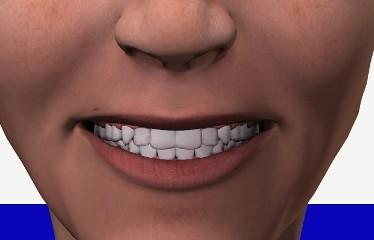 dentestrie_cerec